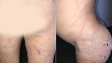 Imagens do corpo da criança mostram inúmeros ferimentos, provocados por fios de cobre e pedaços de madeira: barbárie Foto: Polícia Civil/Divulgação)